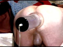 Anal Stuffing and Prolapse Pumping 15m